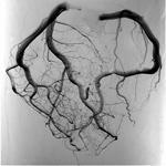 心臓と血管の病気