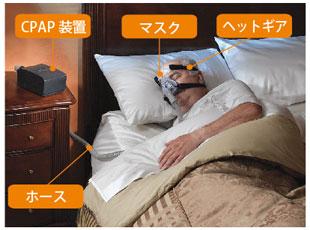 無 呼吸 症候群 マスク