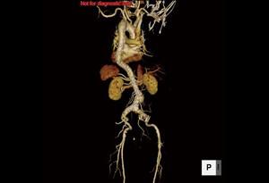 腹部大動脈CT画像